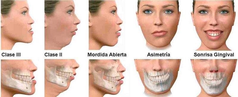Yetişkinlerde Ortodonti Tedavisi