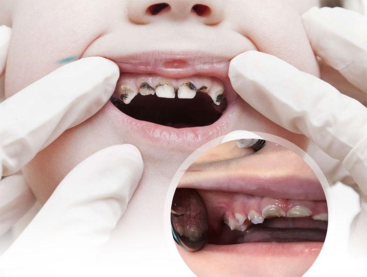 Çocuk Ağız ve Diş Sağlığı (Pedodonti) Sıkça Sorulan Sorular