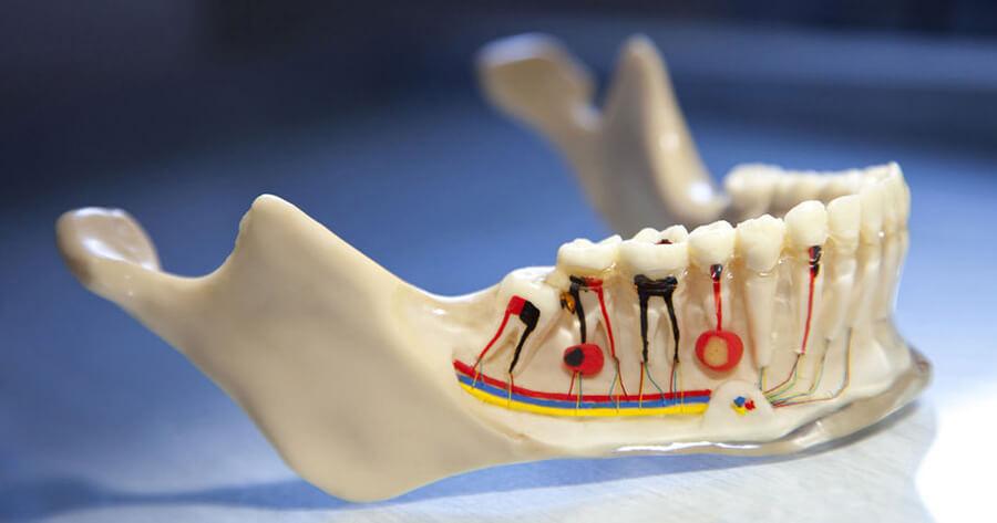 Çocuklarda Diş Kanal Tedavisi