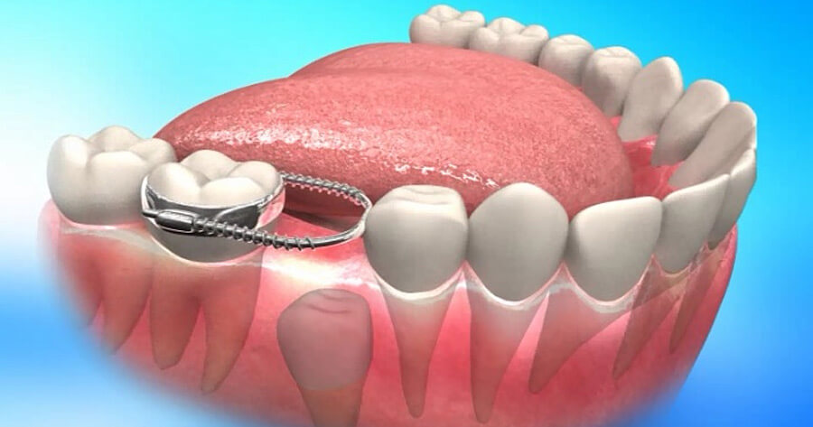 Diş Yer Tutucuları
