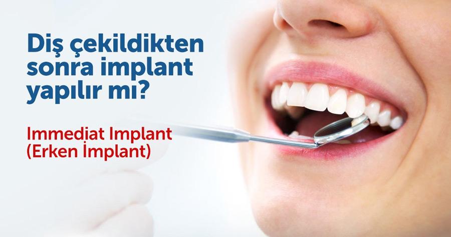 , Erken (Hızlı) İmplant (Immediat Implant)