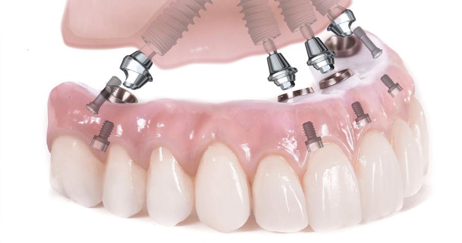 , Имплантация Зубов