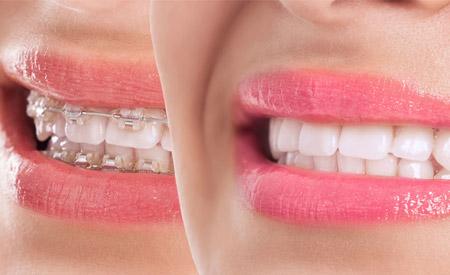 , MYRA Ağız ve Diş Sağlığı Polikliniği | Antalya, Lara