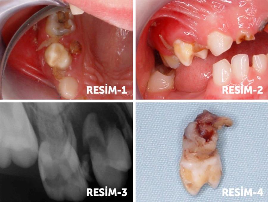 Süt Dişleri ve Süt Dişlerinin Çekimi