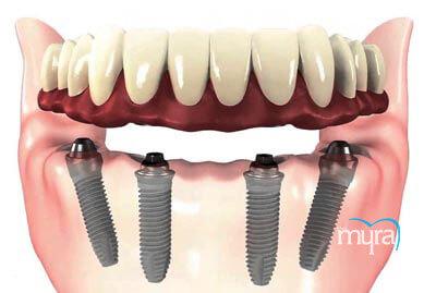 , All On 4 diş implantı Nedir?