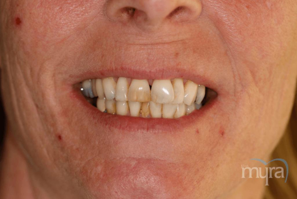 , Aşınmış ve Kırık Dişler